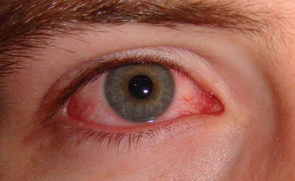 Fotoconjuntivitis