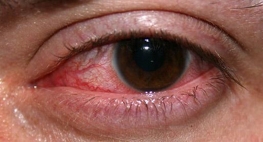 infeccion ocular