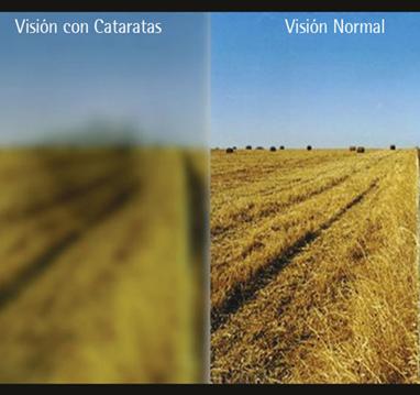 Vision-cataratas