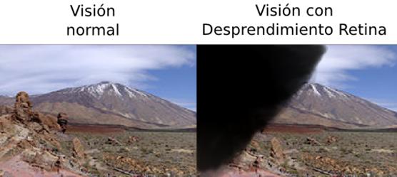 Vision-desprendimiento-retina