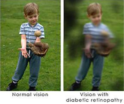 Vision-retinopatia